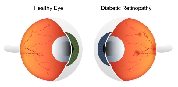 Illustration of hemorrhage in retina - Diabetic Retinopathy